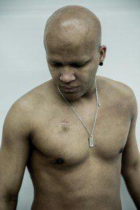 B2wins Brazilian 2wins Cancer